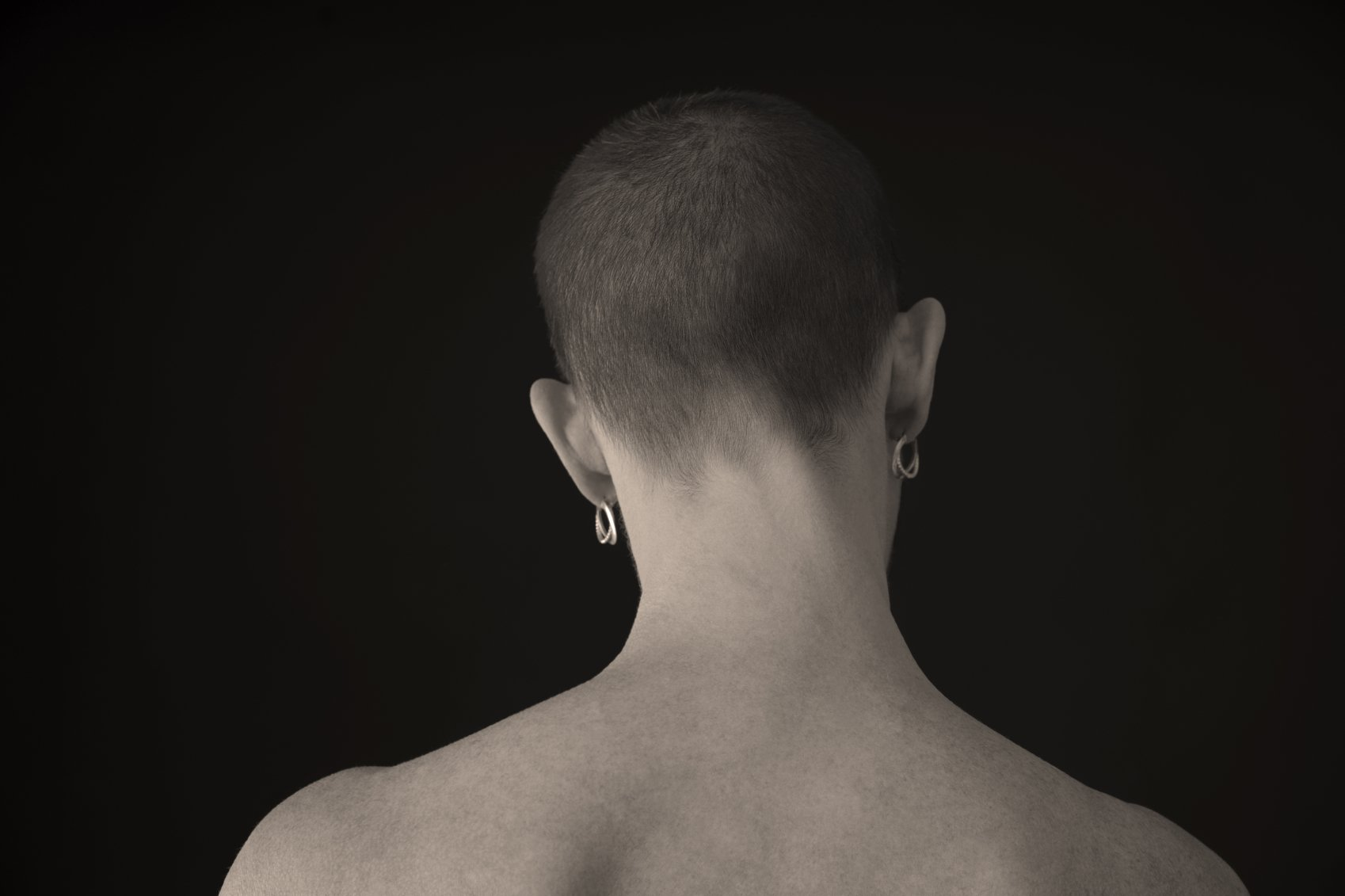 Bald Nude Woman With Cancer, Facing Away From The Camera